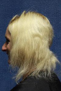 Cabelos Ressecados cabelos loiros danificados - Cabelos Ressecados - Causas