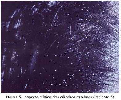 Tricorrexis Nodosa