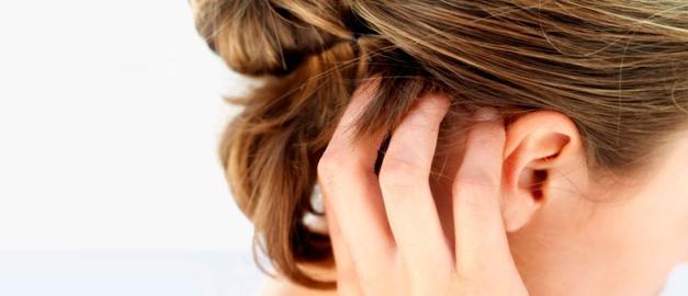 Seu couro cabeludo descama?